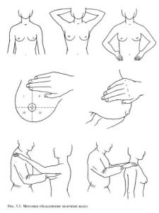 Обследуй грудь